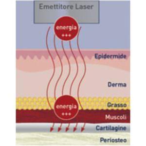laser terapeutici