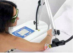 Laserterapia gomito con Laserix