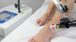 Trattamento alla caviglia con Laserix
