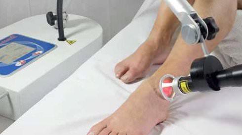 Laserterapia antalgica alla caviglia con Laserix