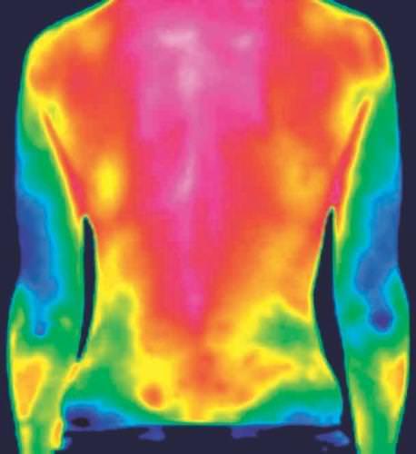 Immagine di una schiena mediante termocamera qmd
