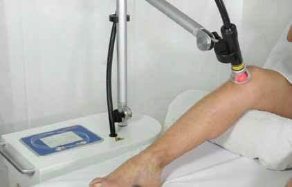 Laserterapia ginocchio con il Laserix