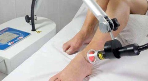 Laserix - Trattamento alla caviglia